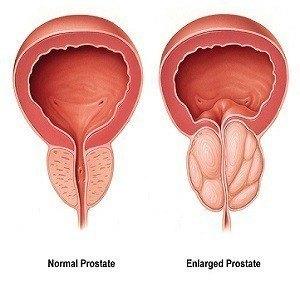 Prostate Wellbeing